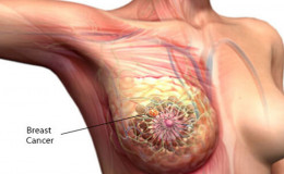 Breast cancer; A rising health problem in women. Know the causes and treatments