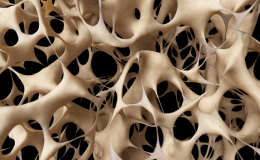 Five facts about Osteoporosis. Are women more affected by it?