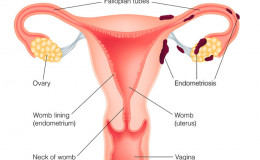 What is Endometriosis? Know about its Sign, Causes, and Remedies