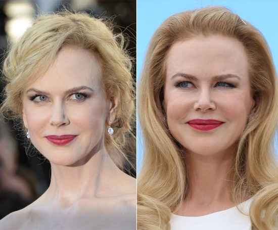 Has Nicole Kidman used Botox Filler; Find about her Plastic Surgery and Relationship