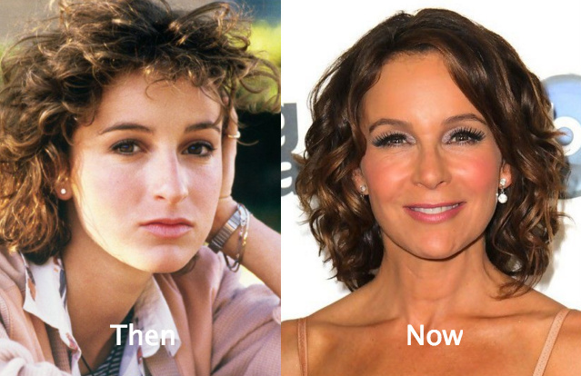 Know About Jennifer Grey Plastic Surgery Treatment See